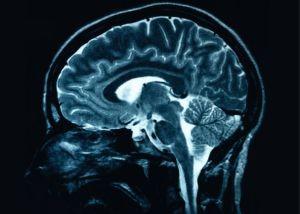 brain2